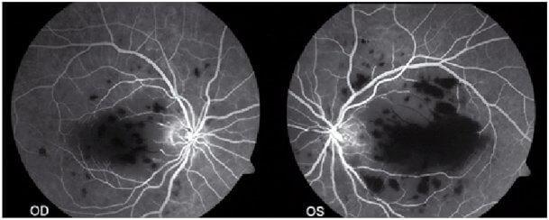 choroby oczu zgierz